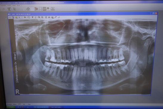 Röntgerei